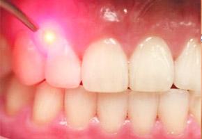 gum_treatment